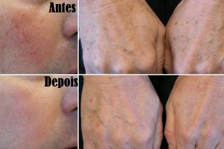 ipl-treatments-before-after