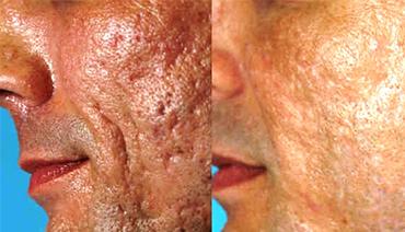 Laser CO2 Fracionado para Tratamento de Cicatriz de Acne