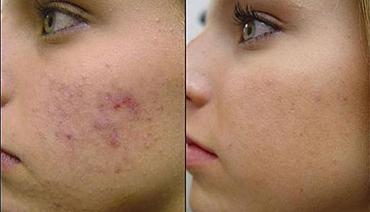 Luz intensa pulsada tratamento cicatriz de acne