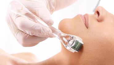 Microagulhamento para tratamento de cicatriz de acne