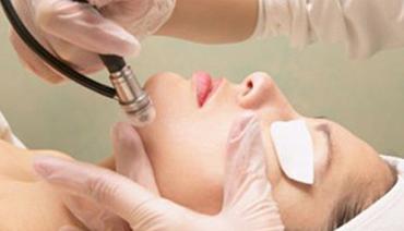 Microdermoabrasão para tratamento de cicatriz de acne
