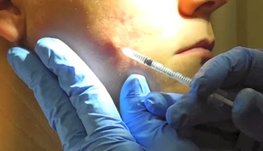 Preenchimento com Ácido Hialurônico tratamento Acne