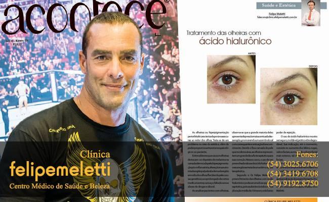Dr Felipe Meletti é destaque da Revista Acontece de junho com o tema olheiras Confira a matéria completajunho 2014