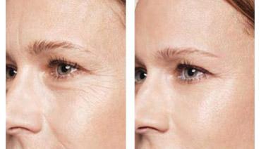 Skinbooster (hidratação injetável)