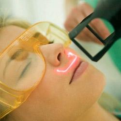 Laser de CO2 Fracionado na Face