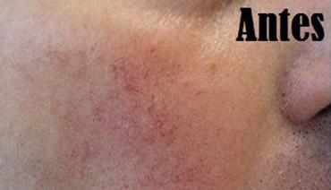 Luz Intensa Pulsada para remoção de vasos e manchas rosto antes do tratamento