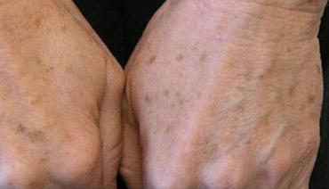 Luz Intensa Pulsada para remoção de vasos e manchas mãos antes do tratamento