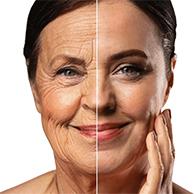 Peeling de Fenol (Restart Facial)
