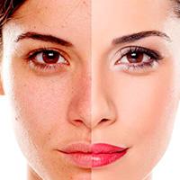 Restart Facial (Peeling de Fenol)